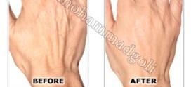 جوان سازی پوست دست با تزریق چربی