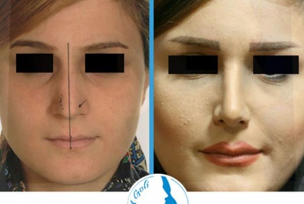 nose-surgery4-3