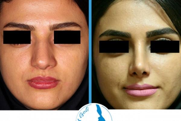 nose-surgery4-5