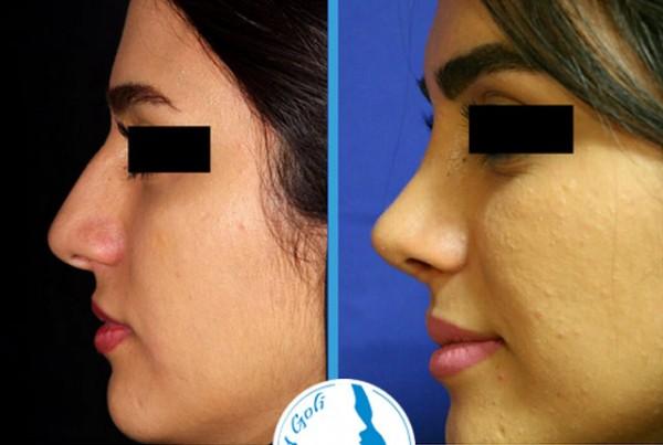 nose-surgery4-6