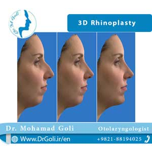 3D rhinoplasty