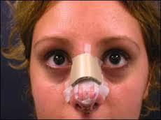 درمان کبودی بینی