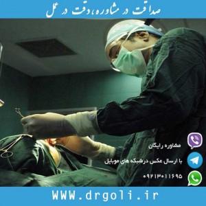 مطالب غیر واقعی در جراحی بینی