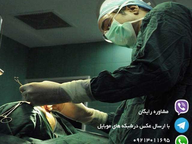 dr goli nose surgery