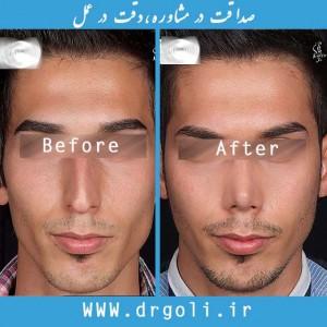 سن مناسب برای جراحی زیبایی بینی