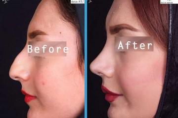 nose surgery dr goli