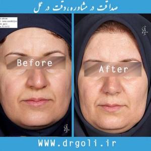 نازک کردن پوست بینی های گوشتی