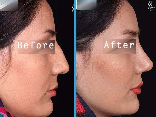 Nose surgery dr goli 50