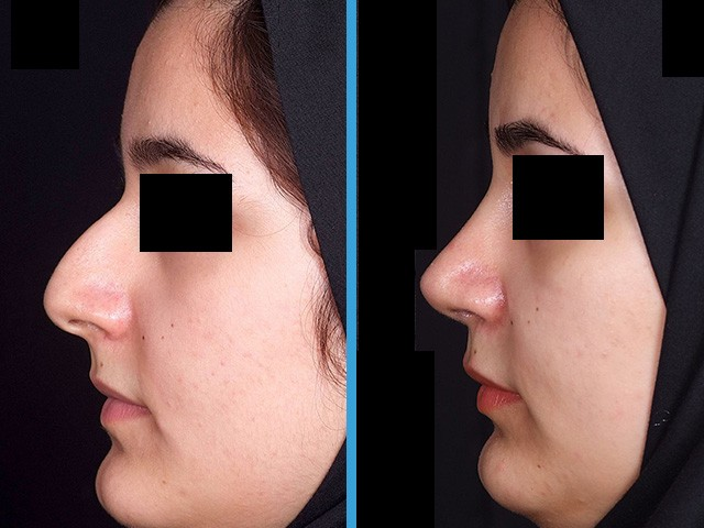 رژیم غذایی جراحی بینی