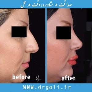 شست و شو بینی پس از جراحی بینی