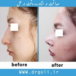 استفاده از غضروف در جراحی بینی