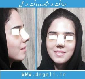 اقدامات قبل از عمل جراحی زیبایی بینی