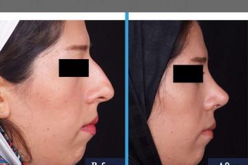 جراحی زیبایی 52