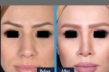 جراحی بینی زیبایی فانتزی