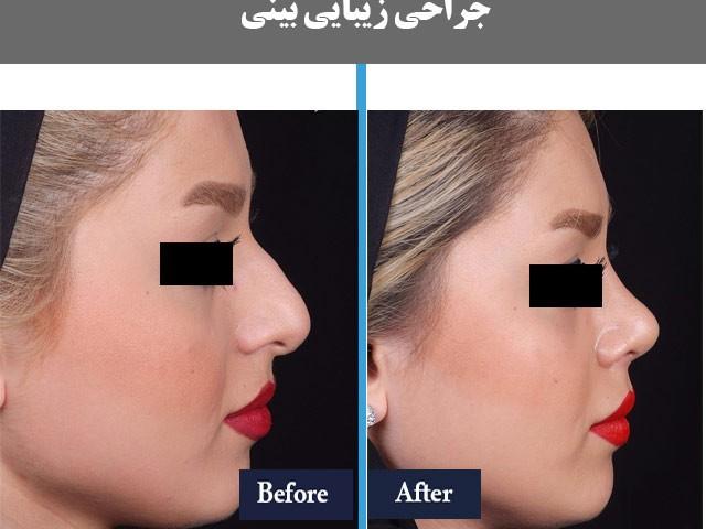موفقیت در جراحی بینی