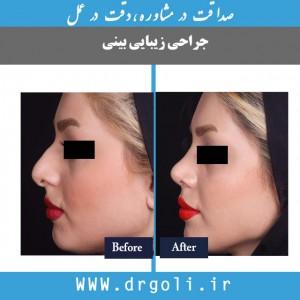 موفقیت جراحی بینی