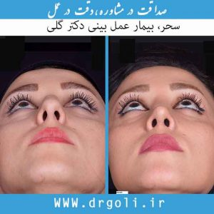 سوراخ بینی بعد از عمل