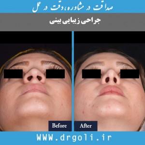 جراحی بینی و شغل افراد