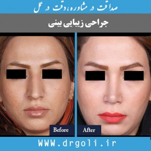 جراحی بینی گوشتی | جراح بینی | جراحی زیبایی بینی
