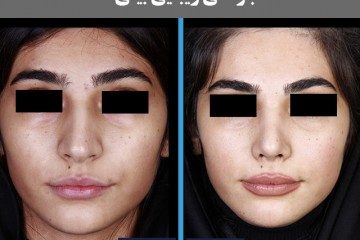 عمل زیبایی بینی استخوانی
