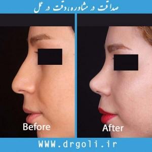 نکات مهم بعد از عمل بینی
