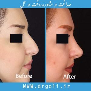 جراحی بینی زیبایی