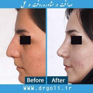 ماساژ بینی بعد از جراحی بینی