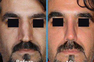 جراحی بینی آقایون