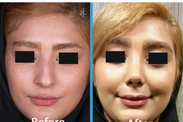 جراحی زیبایی بینی عروسکی