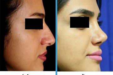جراحی بینی استخونی