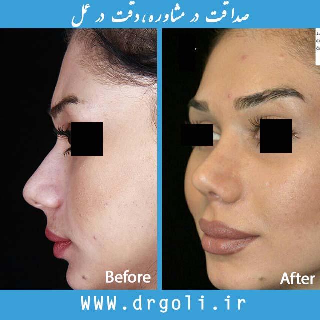 نمونه جراحی بینی 145
