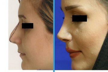نمونه قبل و بعد عمل بینی