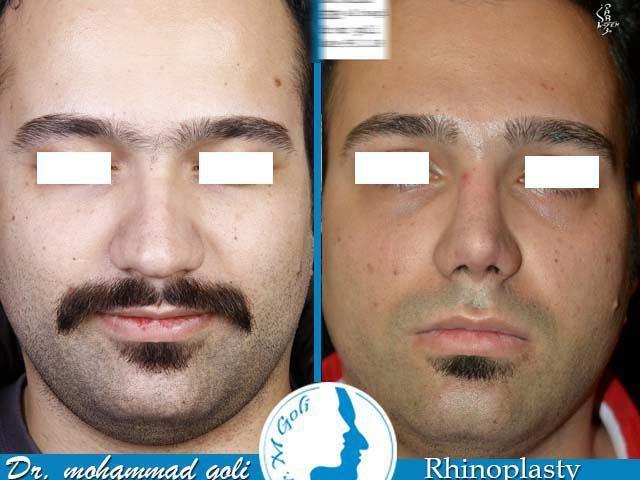 جراحی بینی دکتر گلی
