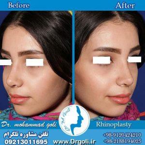 اقدامات لازم قبل و بعد جراحی بینی