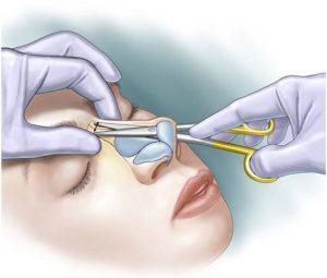 روش جراحی بینی بسته