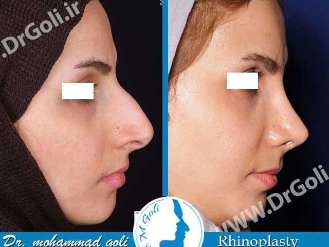 جراحی بینی بعد از عمل 1