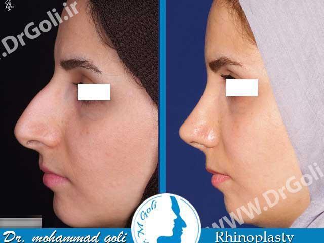 جراحی بینی بعد از عمل 2
