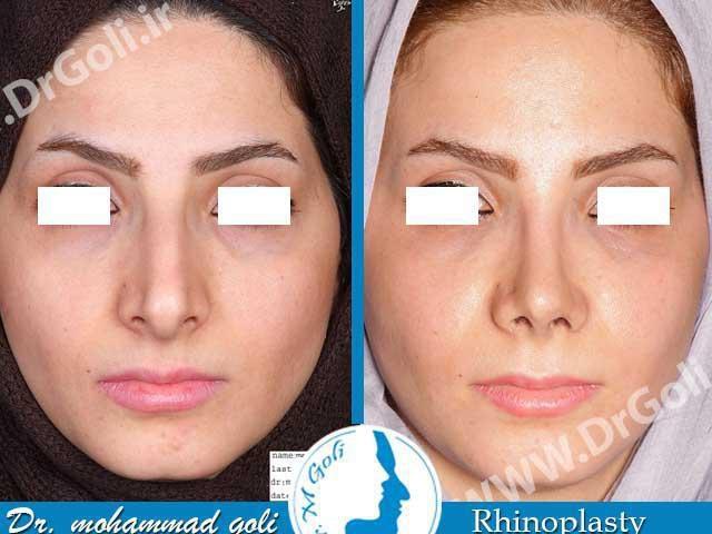 جراحی بینی بعد از عمل 3