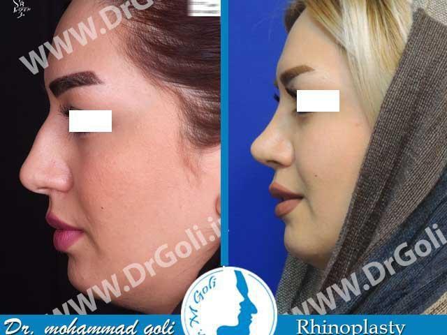جراحی زیبایی بینی-1-1