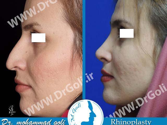 جراحی زیبایی بینی-1-2