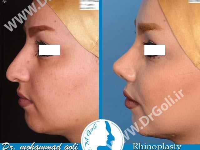 جراحی زیبایی بینی-1-3
