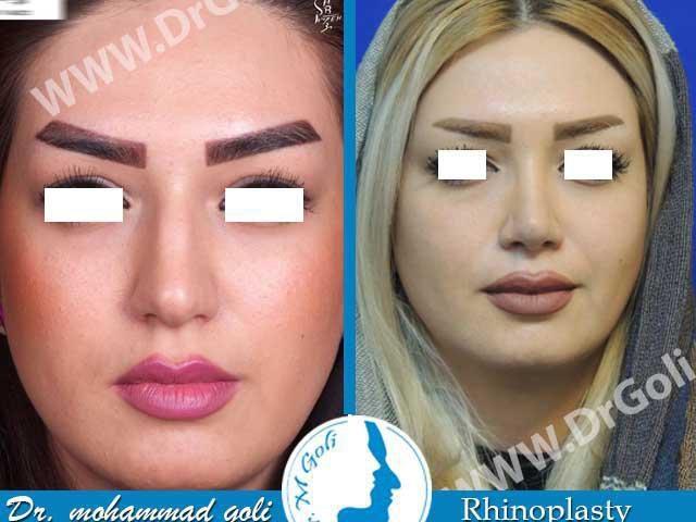 جراحی زیبایی بینی-2-1