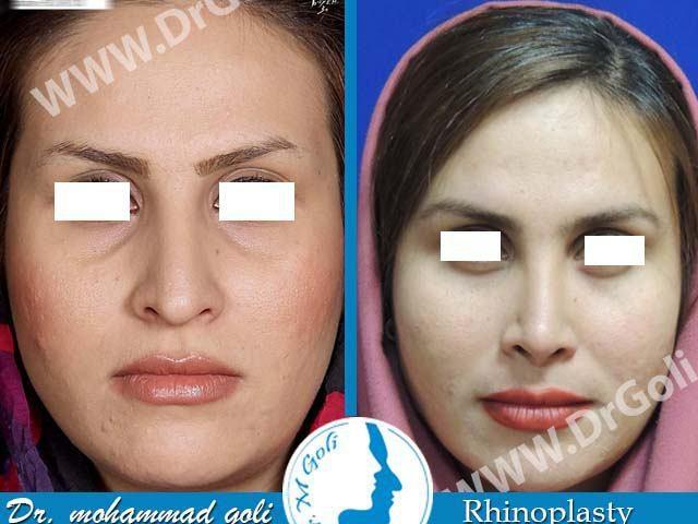 جراحی زیبایی بینی-2-2