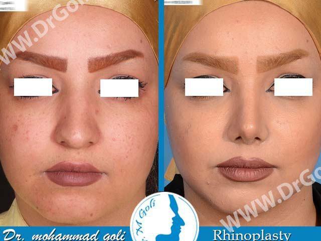جراحی زیبایی بینی-2-3