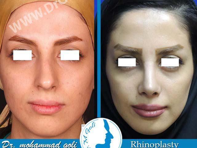 جراحی زیبایی بینی-2-4