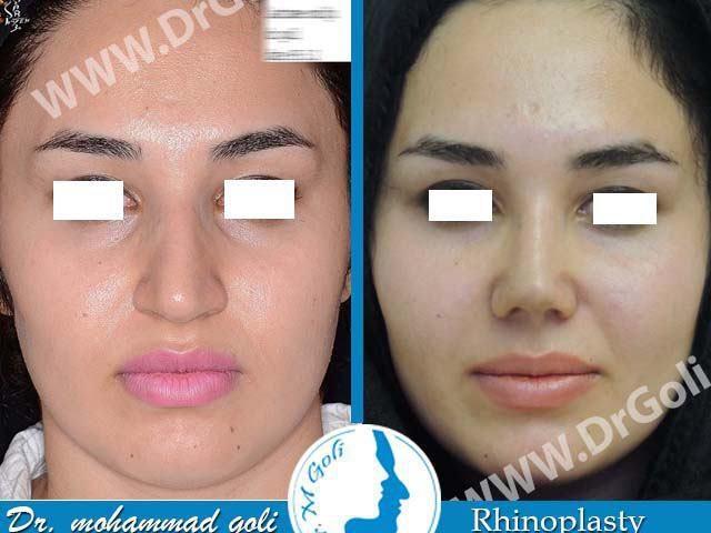 جراحی زیبایی بینی-2-5