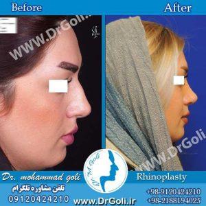 روش های جلوگیری از کبودی بعد از عمل جراحی بینی