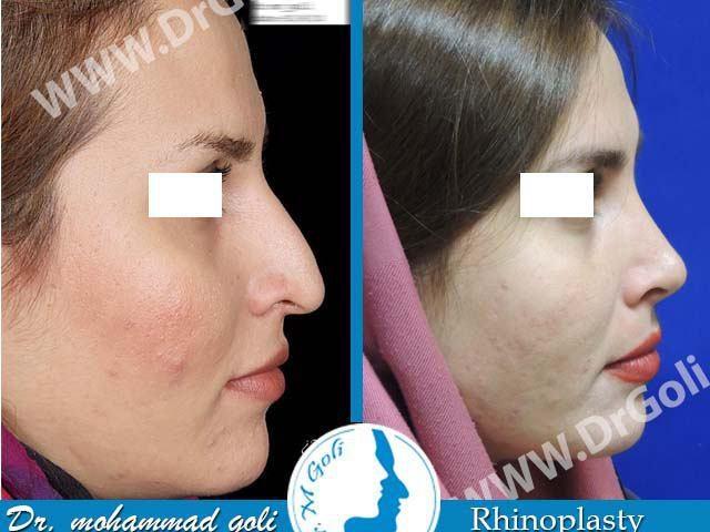 جراحی زیبایی بینی-3-2