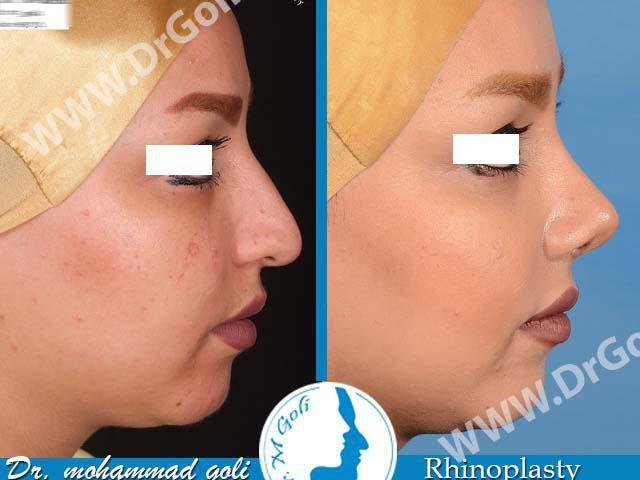 جراحی زیبایی بینی-3-3