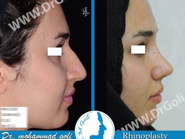 جراحی زیبایی بینی-3-5